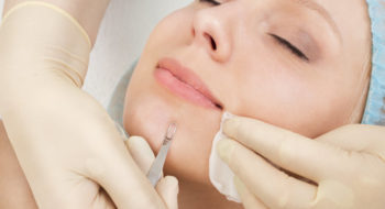 Are Blackhead Extractions Good For Our Skin Or Not?